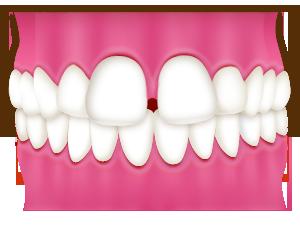 すきっ歯が気になる