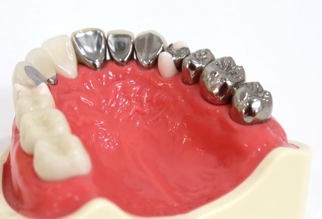 銀歯を白い被せものに取り替えたい