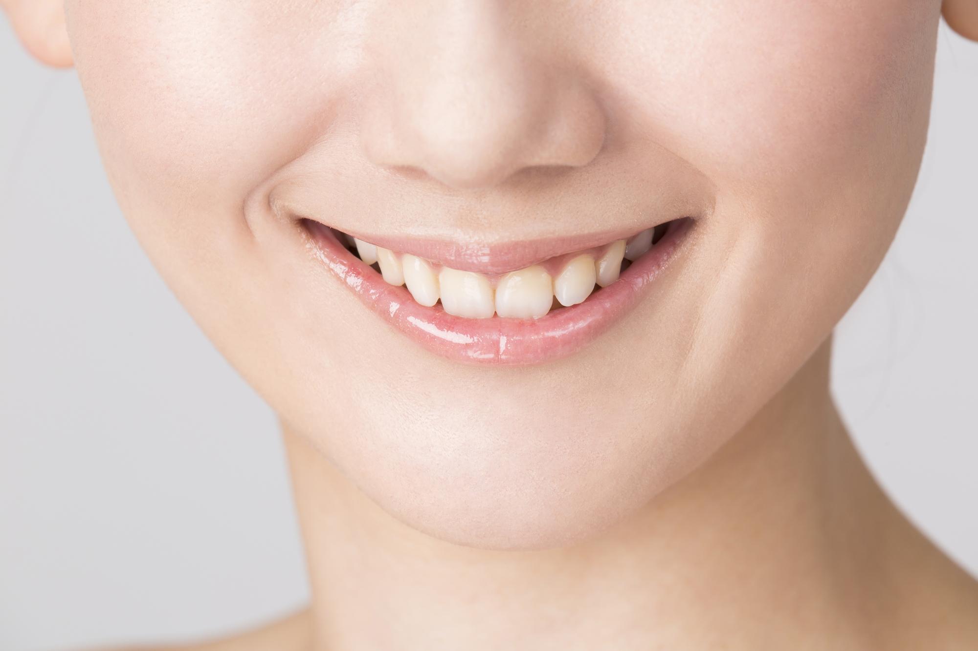むし歯の治療痕を目立たなくしたい